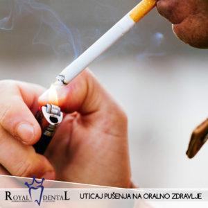 Zbog hemijskog sastava cigarete, promene u usnoj duplji mogu biti veoma ozbiljne