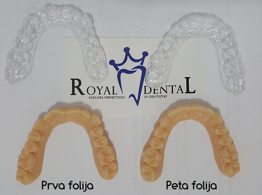 Providne folije za ispravljanje zuba - prva i peta folija iz seta