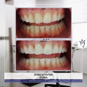 Izbeljivanje zuba u ordianciji - efekat vidljiv za manje od sat vremena