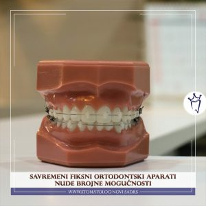 Uspešan ortodontski tretman se postiže samo detaljnim planiranjem terapije i izbegavanjem kompromisa koji nude samo trenutne benefite