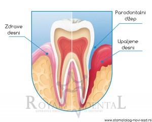 Krvarenje desni je prvi simptom oboljenja parodoncijuma