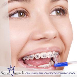Održavanje pravilne i detaljne oralne higijene kod nosilaca fiksne proteze je od ključnog značaja za uspeh terapije