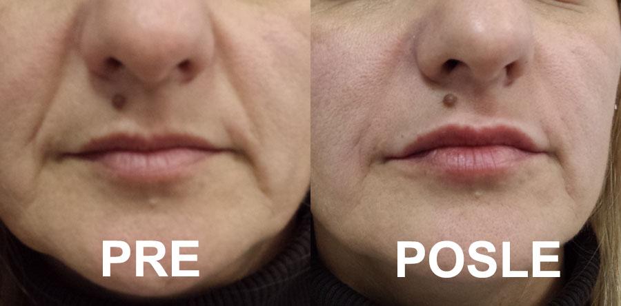 Hijaluronski Fileri - popunjavanje bora - pre i posle samo 1 tretmana