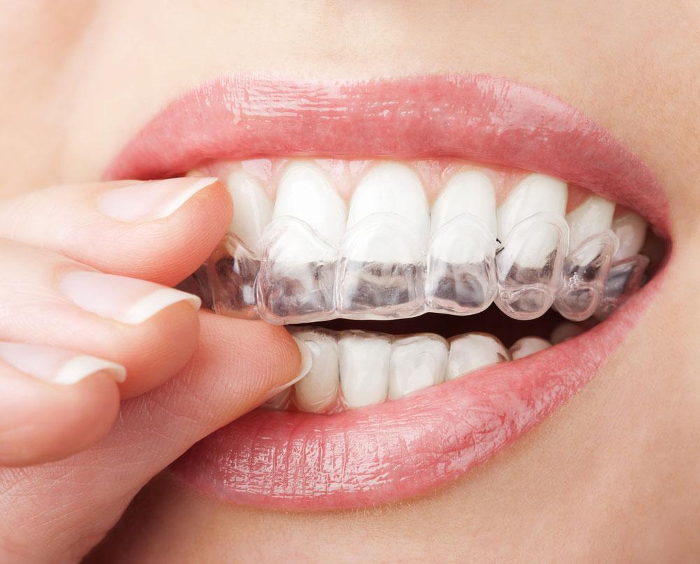 Како пере зубе содом бикарбоном