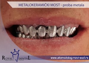 Slika 2. Proba metala za izradu metalokeramičkog mosta