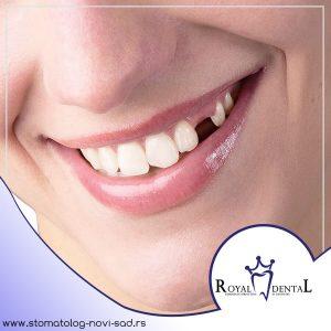 Gubitak zuba jednog ili više zuba ne predstavlja samo estetski nedostatak