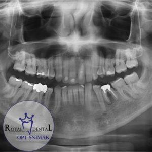 OPT snimak nam pruža informacije o stanju zuba i kosti, na osnovu čega je moguće izraditi poprilično pouzdan plan terapije