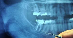 Snimak zuba