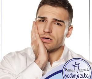 šta posle vadjenja zuba