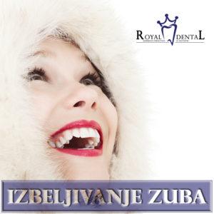 Izbeljivanje zuba je najčešća kozmetičko-stomatološka intervencija čiji efekat zaivsi od navika samog pacijenta