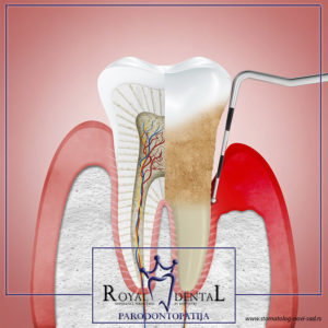 Uklanjanje zubnog kamenca i mekih naslaga sprečava nastanak parodontopatije
