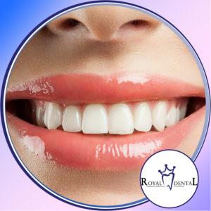 Slikanje zuba i desni daju nam bitne podatke o njihovm međusobnom odnosu, kao i o zdravlju desni