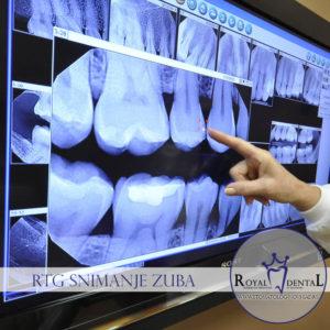 Izloženost zračenju za vreme snimanja zuba je manja nego kod upotrebe mobilnih telefona