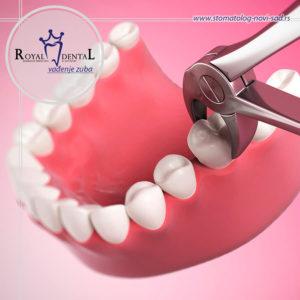 Vađenje zuba predstavlja rutinsku intervenciju, međutim, u nekim slučajevima intervenciju treba da obavi specijalista oralne hirurgije