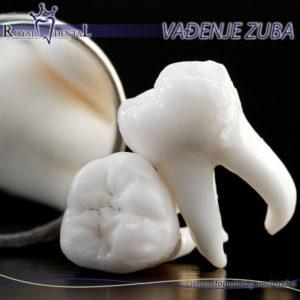 Vađenje umnjaka je najčešći razlog zbog kog vađenje mora da obavi oralni hirurg