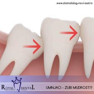 Umnjaci su poslednji zubi u nizu, koji zbog evolutivnih promena u ishrani sve ređe i kasnije niču kod mlađih generacija