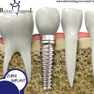 zubni implant