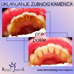 Zubni kamenac - pre i posle